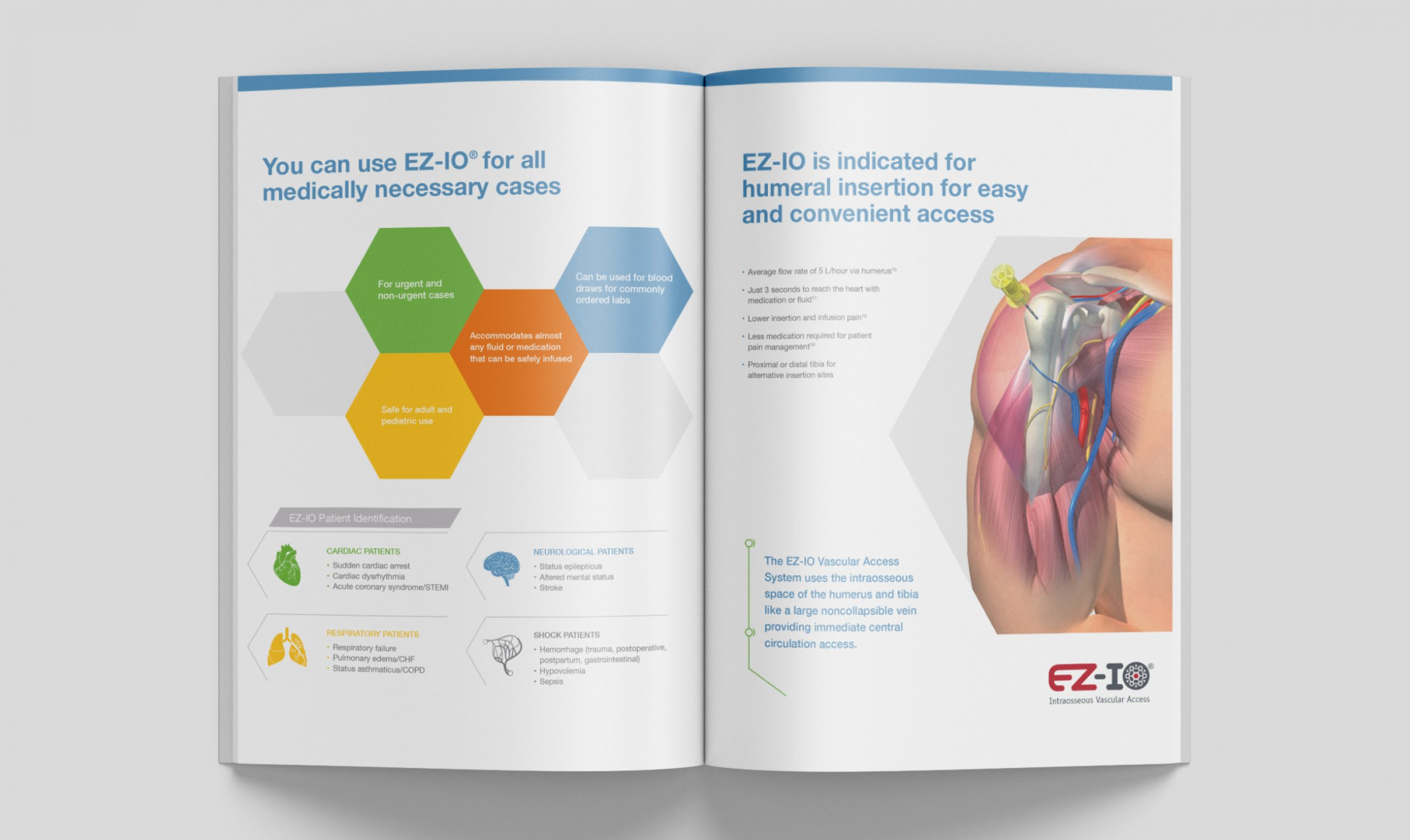 A two page spread about the benefits of EZ-IO